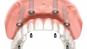 All-On-4 dental implants example