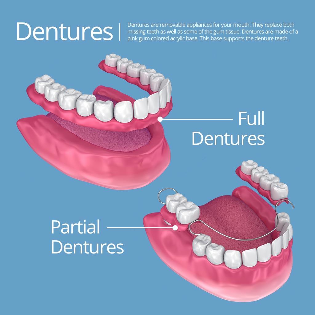 dentures scottsdale